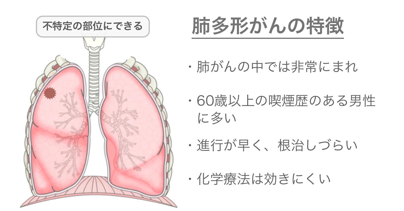 肺多形がんの特徴