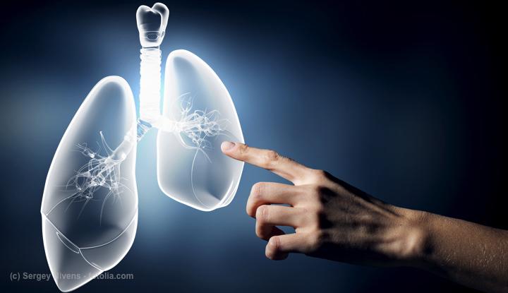 症状 肺がん 余命 末期 肺がんとは(症状/ステージ/治療/生存率/余命)「末期癌克服への懸け橋」