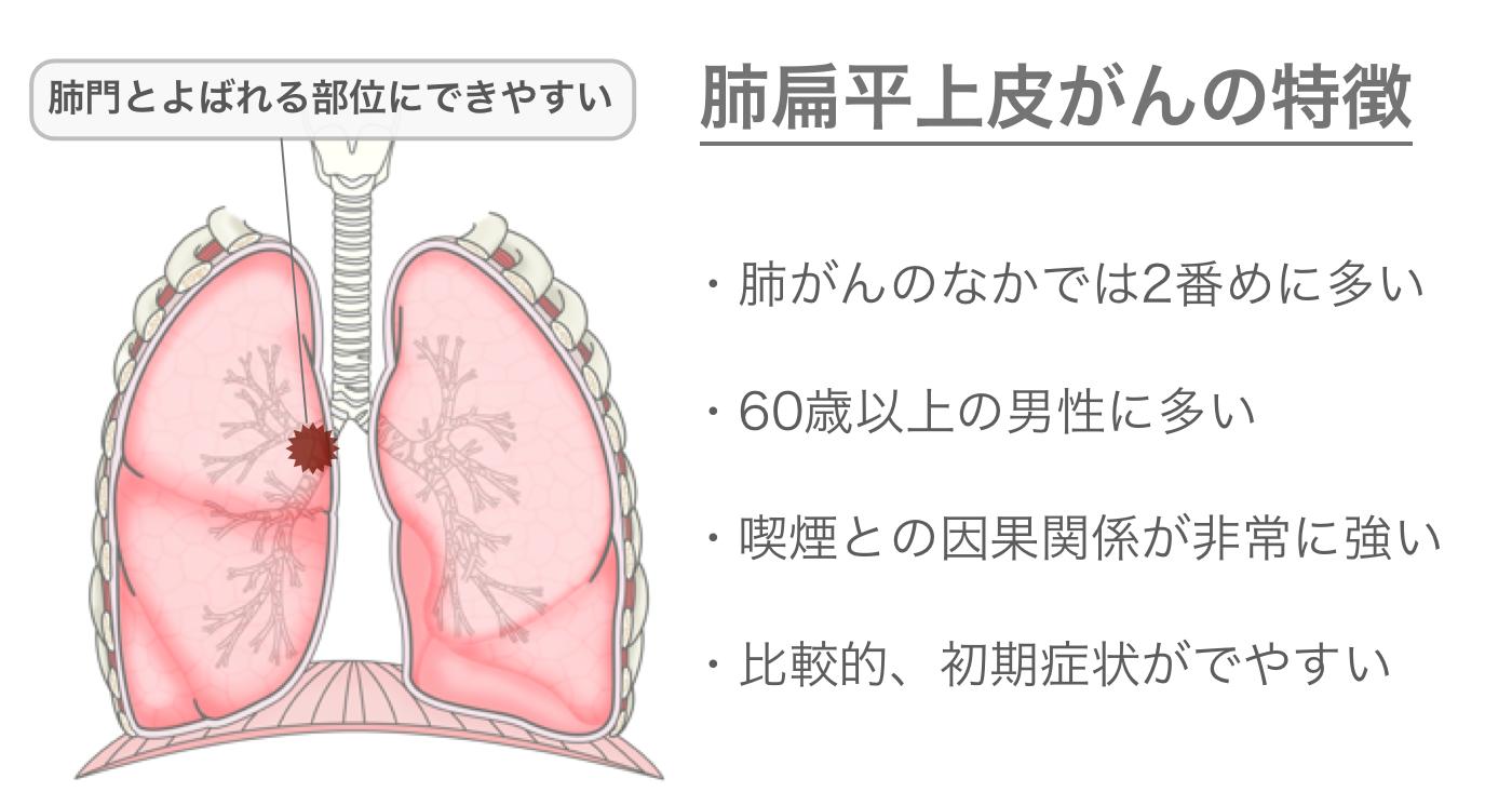 肺扁平上皮がんの特徴
