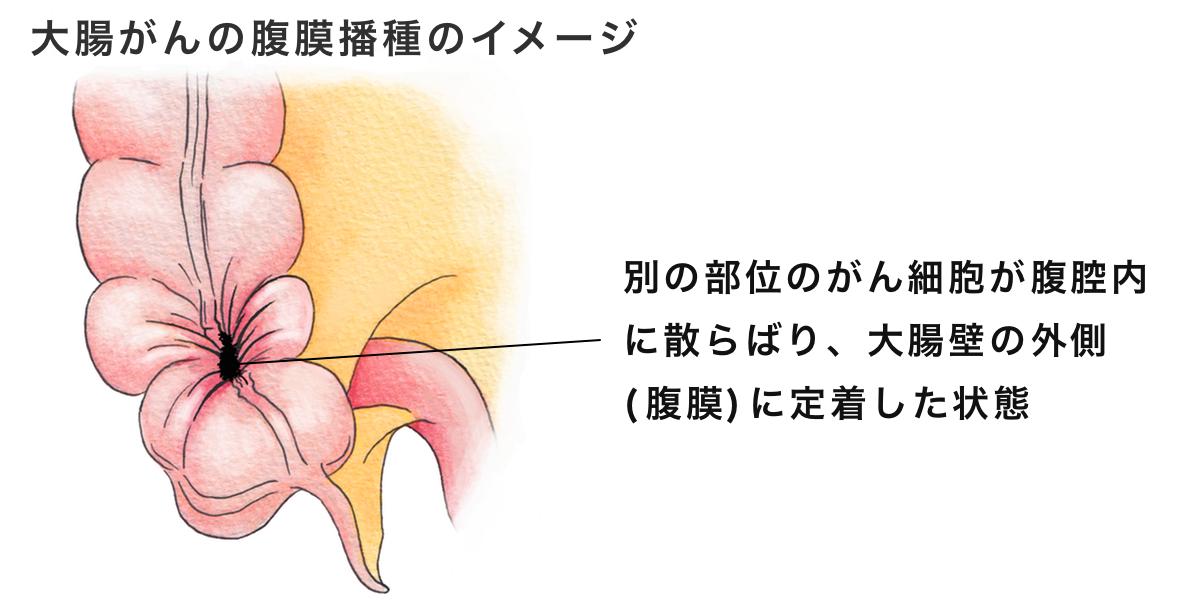 と は 播種 腹膜