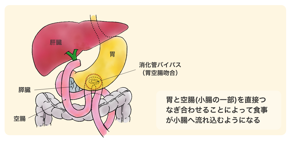 図:胃空腸吻合のイラスト。幽門の通過障害が現れた場合の姑息手術。