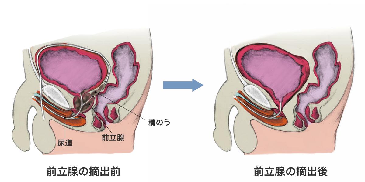前立腺がんの手術