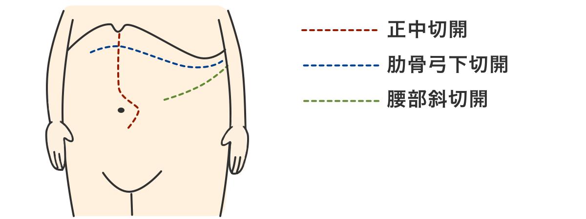 腎がん_開腹手術の種類