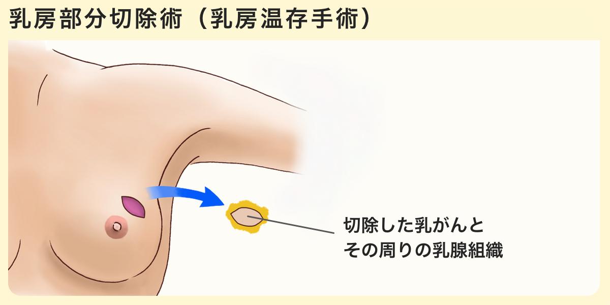 乳がん 手術