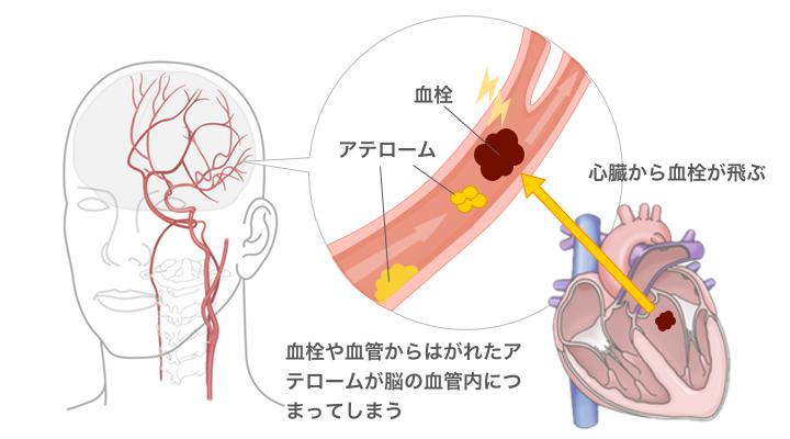 血栓とアテローム
