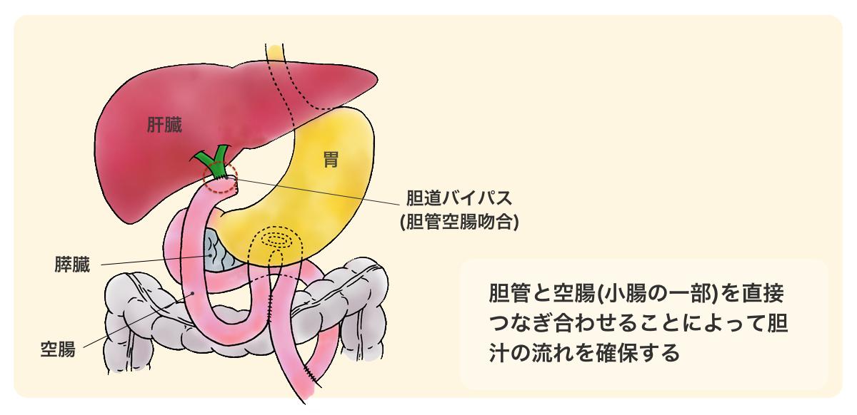 医師監修・作成]膵臓がんの手術...