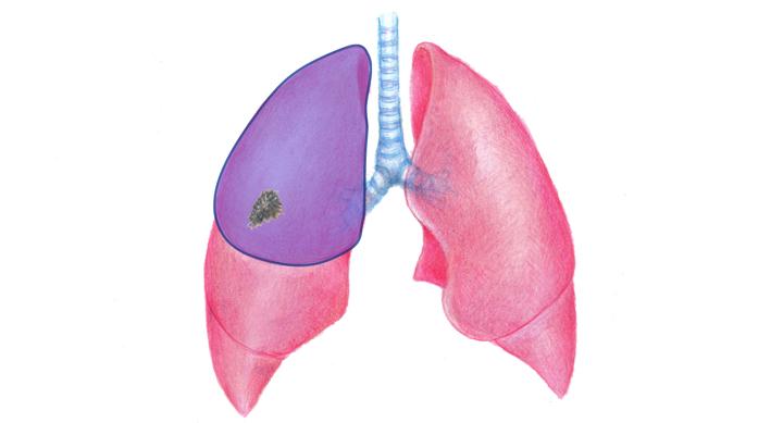 肺葉切除術