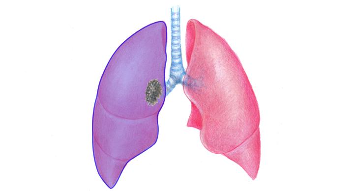 全肺切除術