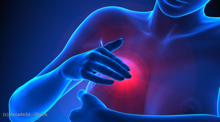 乳がん 初期 症状 痛み