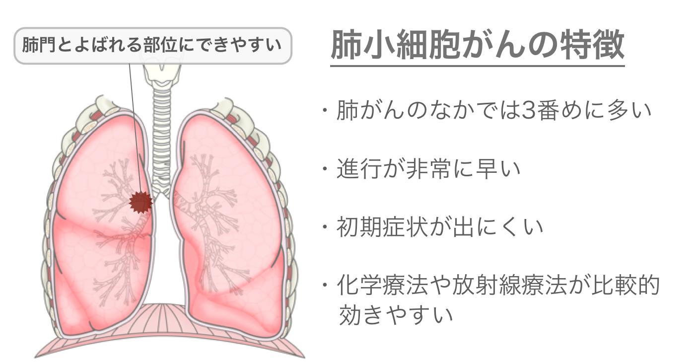 小細胞癌の特徴