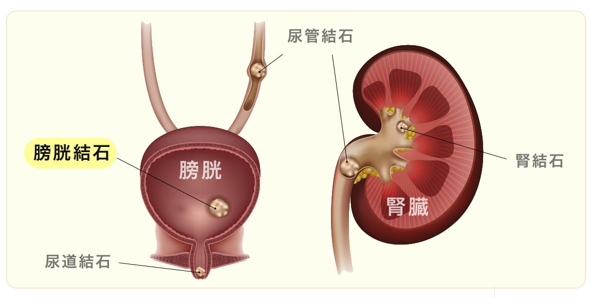 膀胱結石のイラスト