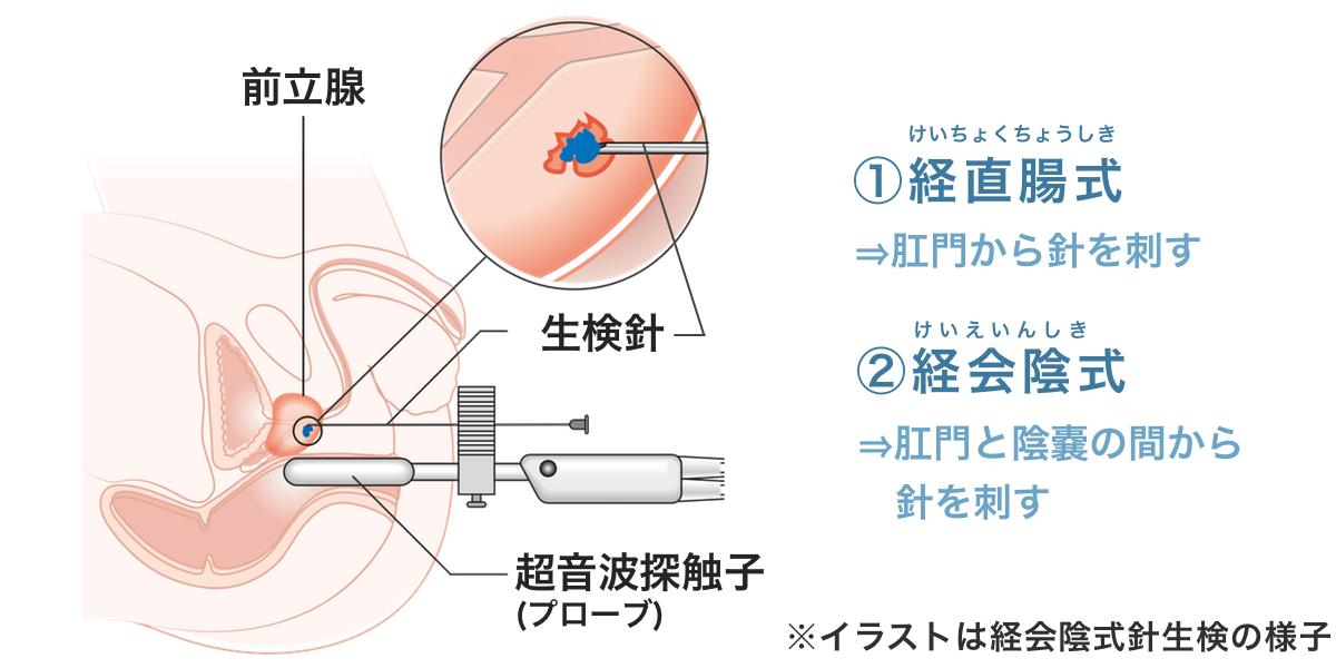 前立腺の針生検