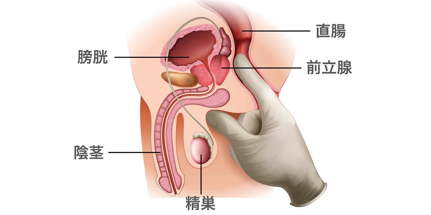直腸診のイラスト