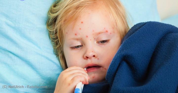 突発性発疹で高熱が出たらどうすればいい?