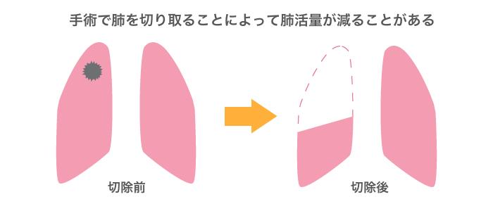 図:肺がん手術の説明イラスト。肺を切り取ると肺活量が減る。もともと肺に余力が少ない人は手術できないことがある。