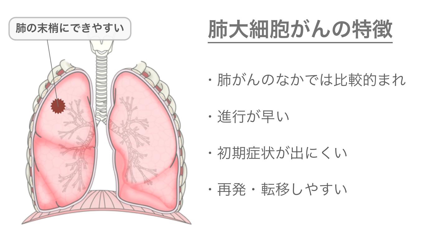 肺大細胞がんの特徴