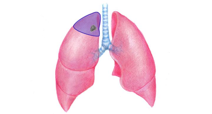 肺がんの区域切除術・部分切除術のイラスト