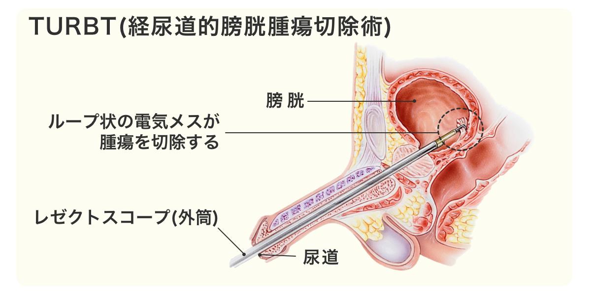 血尿 尿 管 ステント