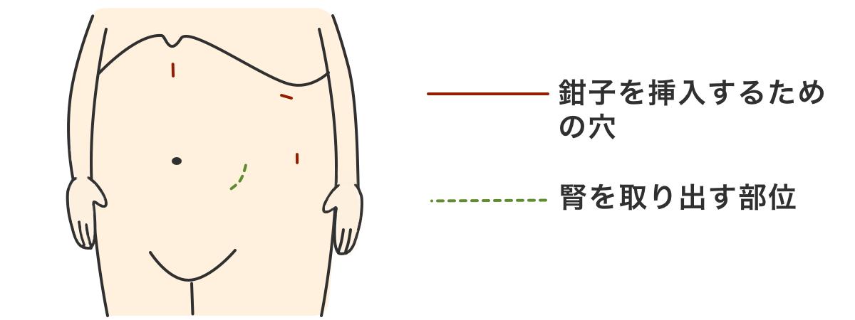 腎がん(腎細胞がん)の手術:開腹手術、腹腔鏡手術、ロボット支援手術など