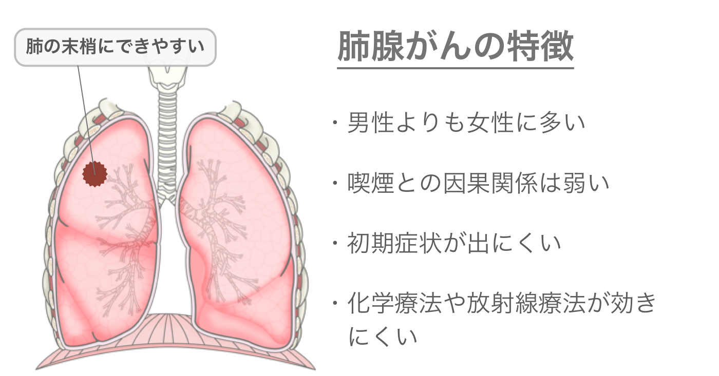肺腺がんの特徴