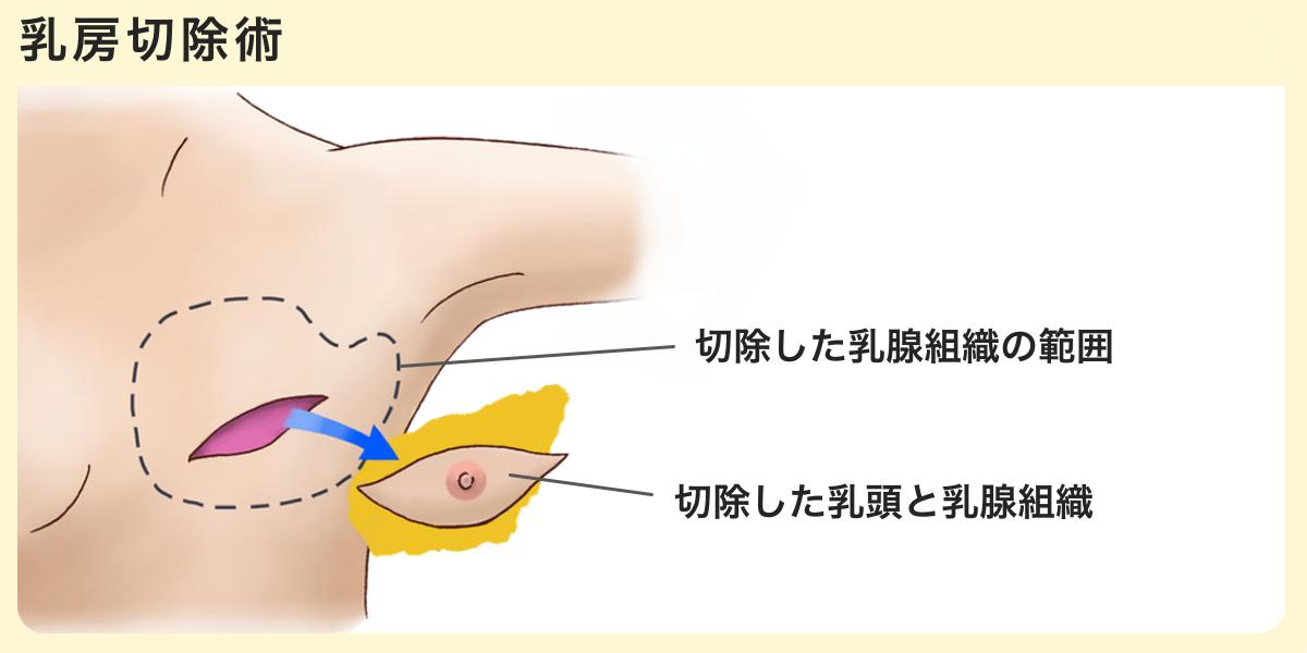 乳房切除術