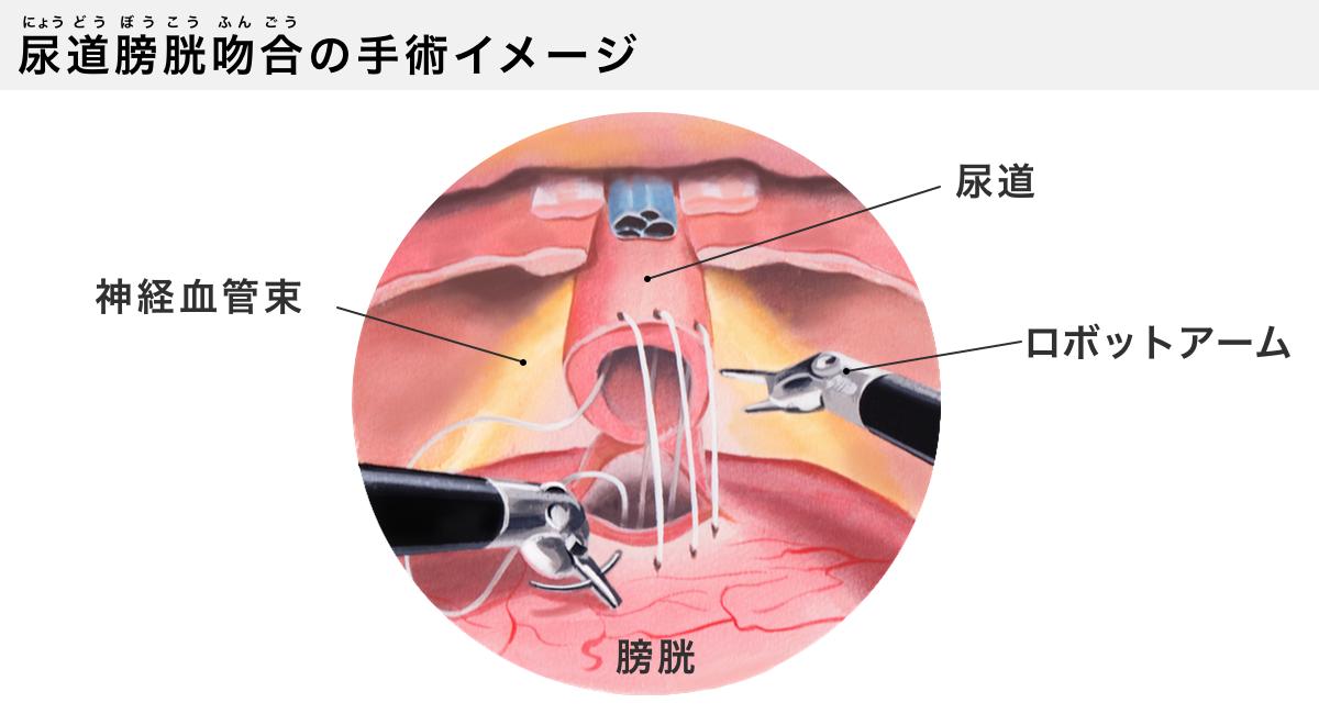 尿道膀胱吻合の手術イメージ