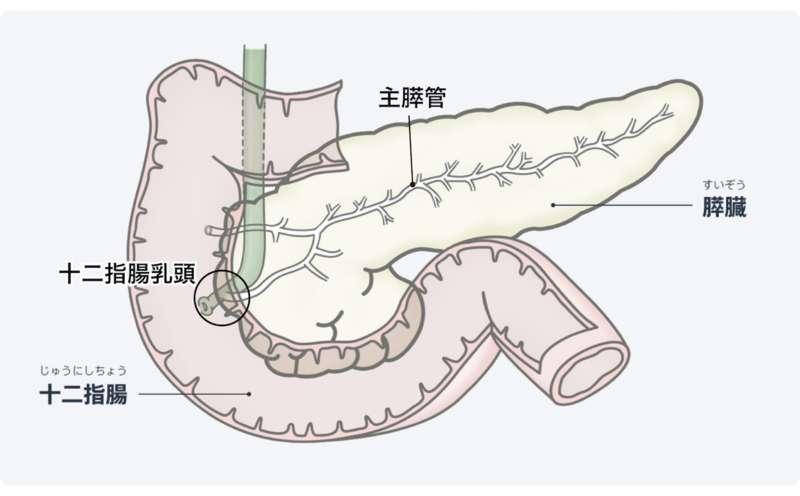 いかん 腫瘍 にゅ うと す えき ない うねん 押川春浪 海島冐檢奇譚
