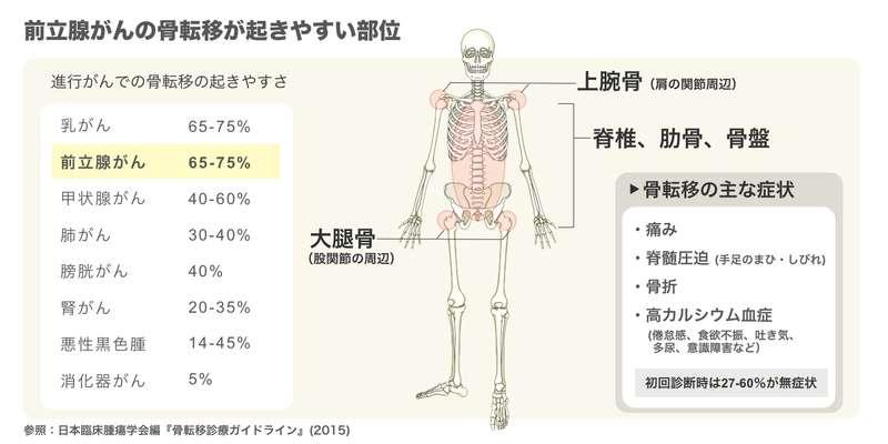 前立腺がんの骨転移が起きやすい部位