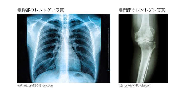 胸部レントゲン写真と関節のレントゲン写真
