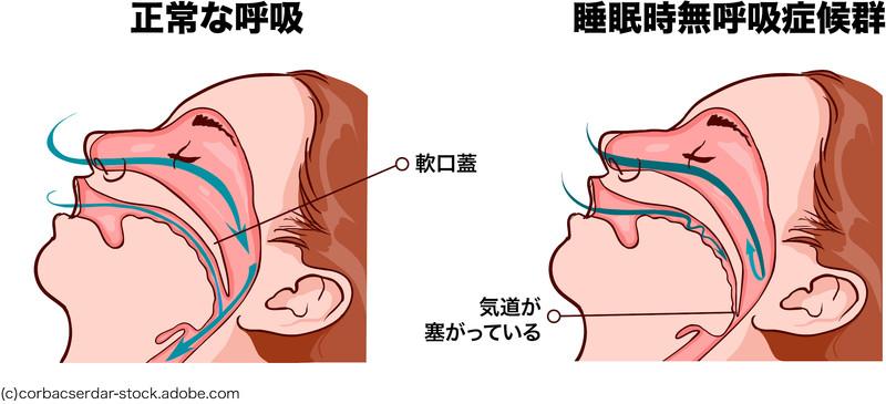 副作用 シーパップ CPAP(シーパップ)とは|睡眠時無呼吸症候群の治療方法 /