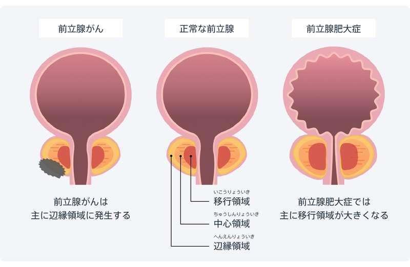 前立腺がん・前立腺肥大症の模式図