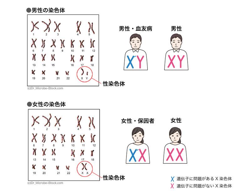 性染色体と血友病の関係