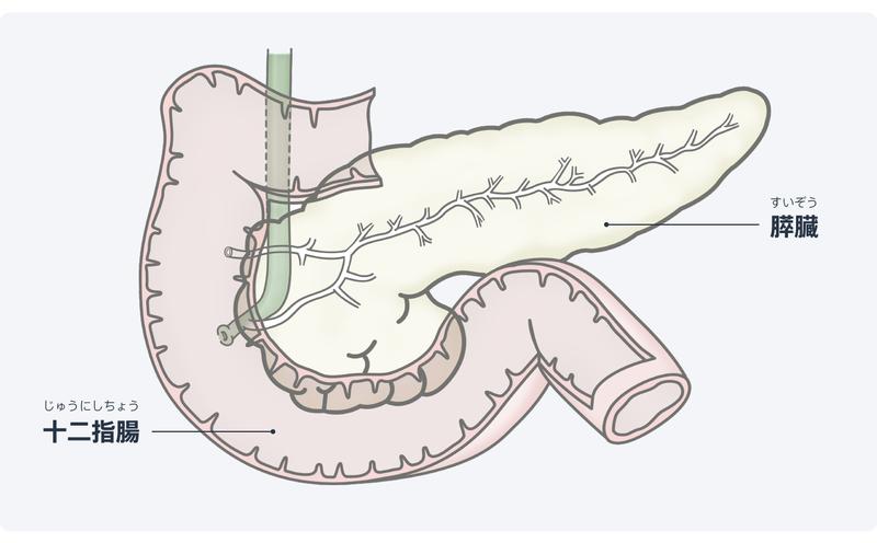 急性 膵炎 症状