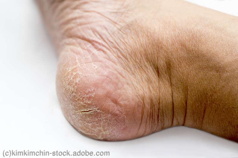 親指 の の 臭い 足 爪