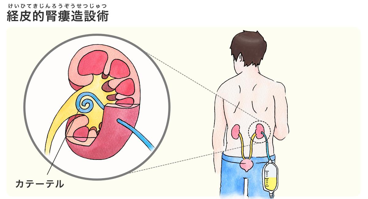 腎盂炎 治療