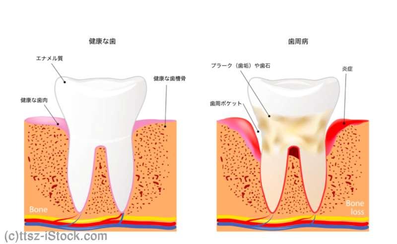 健康な歯と歯周病