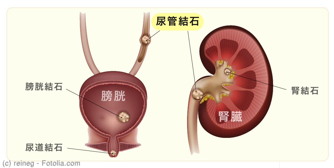 路 結石 症状 尿