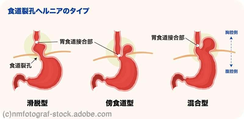 食道 裂孔 ヘルニア 筋 トレ