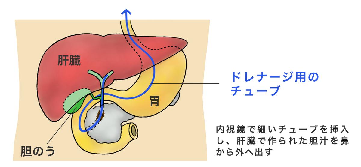 ドレナージ 胆嚢