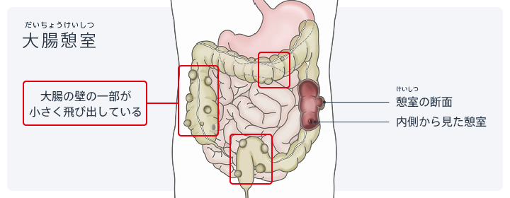図:大腸憩室。大腸の壁の一部が飛び出している。