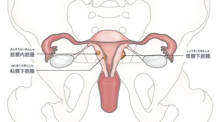 子宮筋腫の場所による分類のイラスト。粘膜下筋腫、筋層内筋腫、漿膜下筋腫に分類できる。