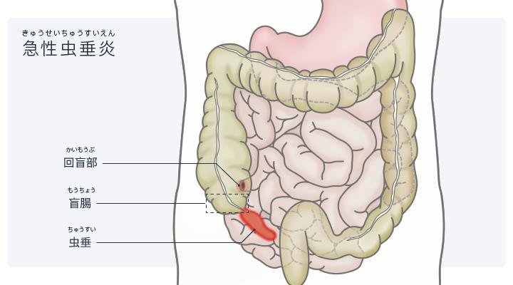 図:急性虫垂炎のイメージイラスト。盲腸と虫垂は右下腹部にある。