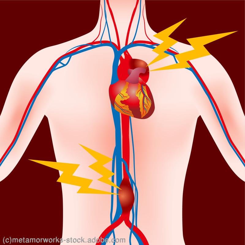 ガイドライン 大動脈 瘤