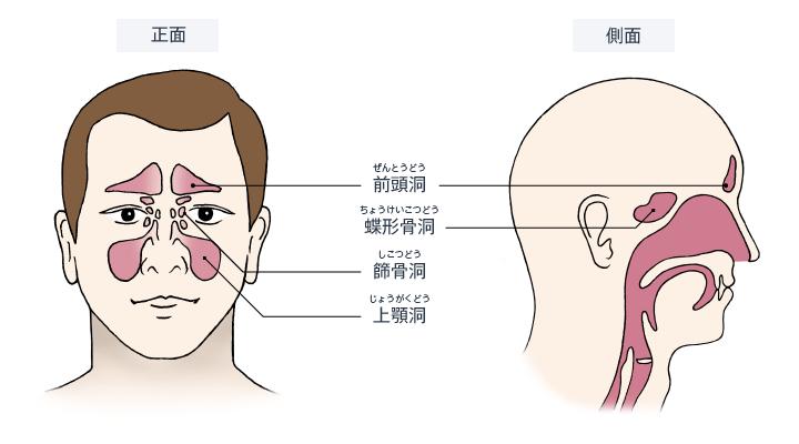 副 鼻腔 炎 手術 慢性