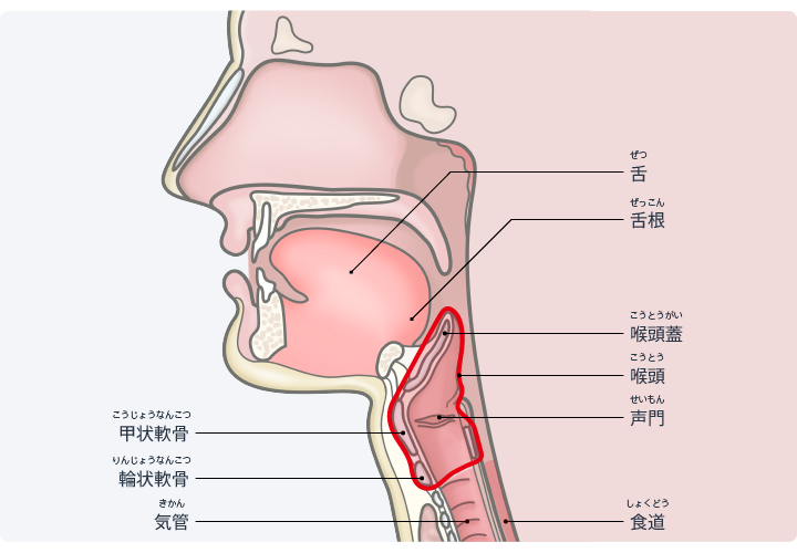 症状 喉頭 癌 初期