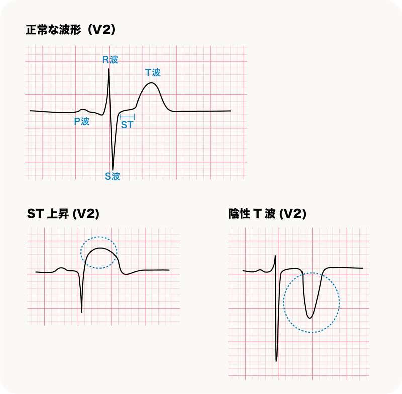 正常波形とST上昇、陰性T波