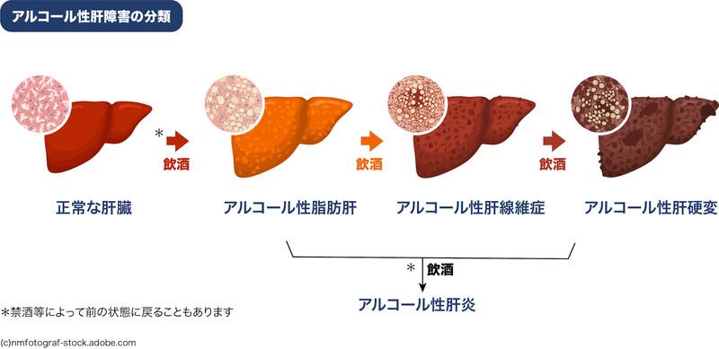 アルコール性肝障害の分類:アルコール性脂肪肝、アルコール性肝線維症、アルコール性肝硬変、アルコール性肝炎