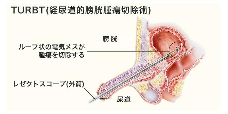 カテーテル 男性 膀胱 留置 用 尿道留置カテーテル(男性)の固定方法:看護師お悩み相談室