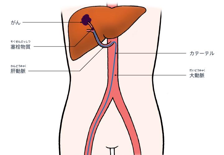 [医師監修・作成]肝臓がんのカテーテル治療:肝動脈化学塞栓 ...