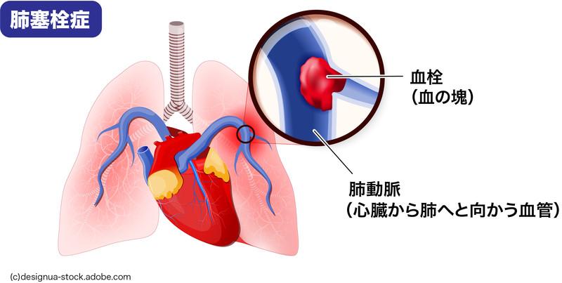 肺塞栓症:血栓が肺動脈に詰まった状態